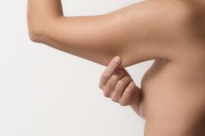 perte de poids peau flasque
